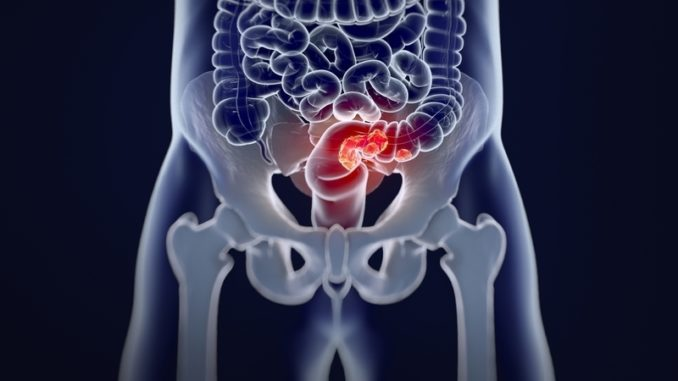 Colon Cancer Now The Third Leading Cause Of Cancer Related Death St Charles Herald Guide